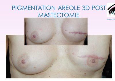 dermopigmentation sein