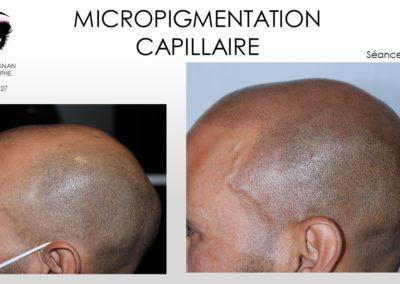 solution calvitie, micropigmentation capillaire nimes montpellier, avignon, ales, arles