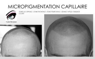 MICROPIGMENTATION CAPILLAIRE UNE ALTERNATIVE AUX IMPLANTS.