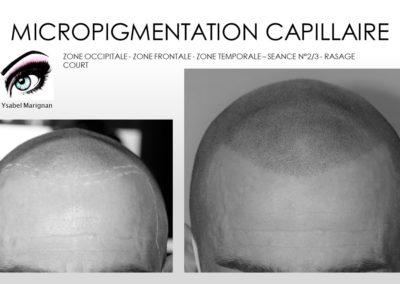 ,solutions calvitie, tricopigmentation,SMP.Micropigmentation du cuir chevelu, nîmes,marseille, montpellier,avignon arles, ales , chauve solution