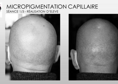 tricopigmentation solution calvitie nimes