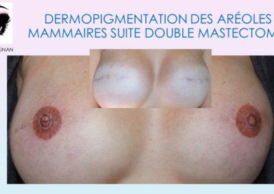 isabellemarignan tatouage réparateur de la plaque aréolo-mamelonnaire