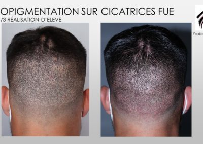 fue cicarices solutions SMP.Micropigmentation du cuir chevelu, camouflage cicatrice d'implant nimes marseille montpellier