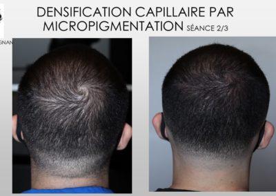 fue cicatrices solutions, implantsSMP.Micropigmentation du cuir chevelu, camouflage cicatrice d'implant nimes marseille montpellier