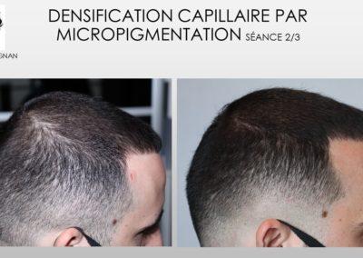 pigmentation debut alopecie