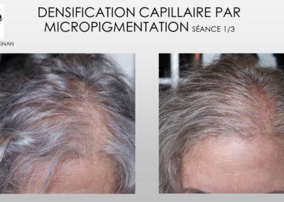 alopécie femme, perte de cheveux solutions,SMP.Micropigmentation du cuir chevelu, camouflage cicatrice d'implant nimes marseille montpellier