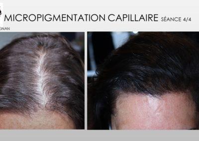 solution alopecie SMP.Micropigmentation du cuir chevelu, camouflage cicatrice d'implant nimes marseille montpellier