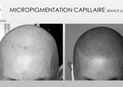 SMP.Micropigmentation du cuir chevelu, camouflage cicatrice d'implant nimes marseille montpellier solution calvititie alopécie
