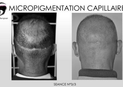 solution implants,cicatrice implants nimes montpellier marseille avignon ales