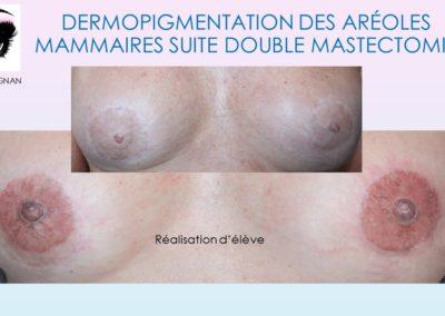formation dermopigmentation nimes, montpellier, avignon,