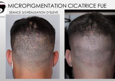 tricopigmentation, micropigmentation capillaire, camouflage cicatrice de FUE, cicatrices implants, nimes,montpellier,marseille,avignon,ales