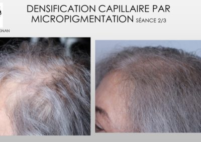 formation tricopigmentation, micropigmentation capillaire, solution calvitie, solution alopécie nimes,montpellier,marseille,avignon,ales