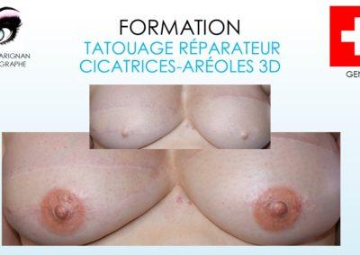 formation dermopigmentation Nîmes, montpellier, avignon, geneve