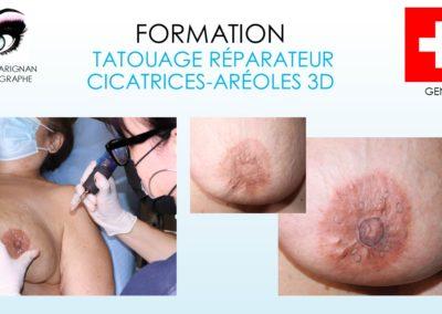 formations isabelle marignan , tatouage reparateur, aréole 3D, cicatricessmp micropigmentation capillaire, tricopigmentation nîmes, montpellier, avignon, alès, arles