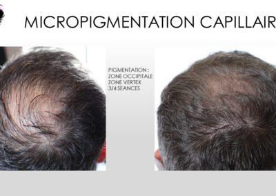 tonsure, tricopigmentation, micropigmentation capillaire, solution calvitie, solution alopécie nimes,montpellier,marseille,avignon,ales