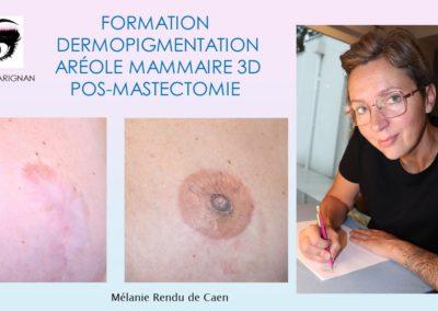 formation tatouage téton 3D, dermopigmentation tatouage téton nimes, montpellier marseilles, avignon nice, aix en provence
